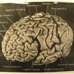 Einstein Brain-Interesting Facts About Einstein