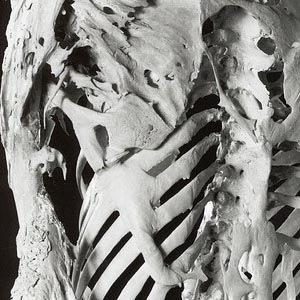 Stone man disease stone man syndrome