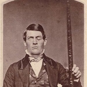 Phineas Gage-Awesome Facts About Brain