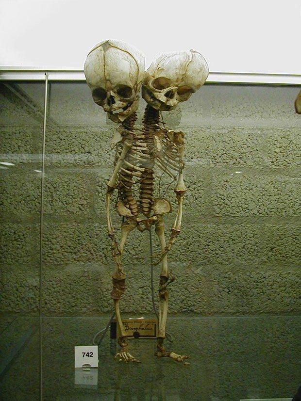 027_The Mütter Museum, Philadelphia, USA