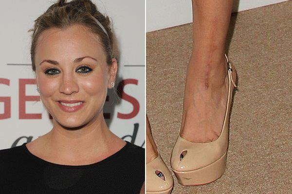 9 Celebrities With Scars | Everyday Health