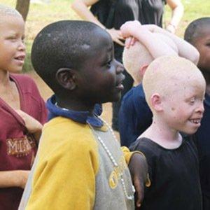 Tanzania Albino